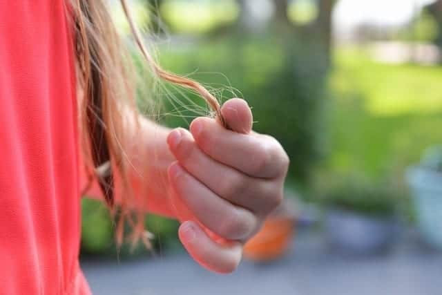 נשירת שיער אצל נשים